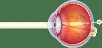 Farsightedness or Hyperopia