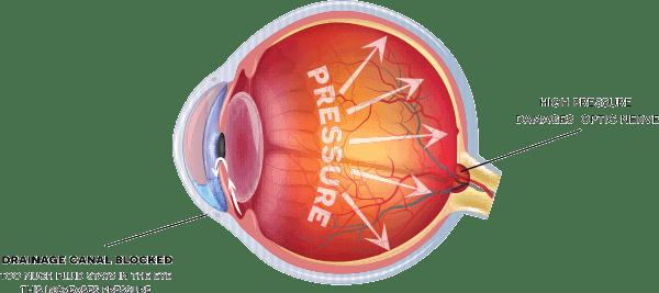 Eye with Glaucoma - Bronx NY Ophthalmology