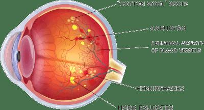 Eye with Diabetic Retinopathy