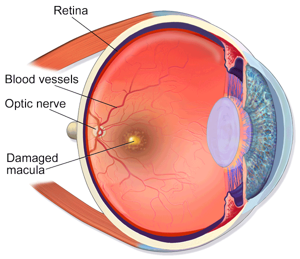 Illustration of human eye with Macular Degeneration
