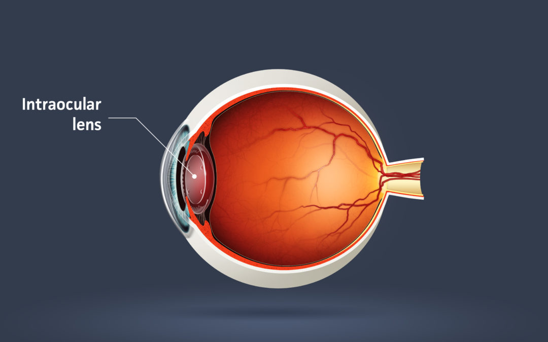 Multifocal Intraocular Lenses (IOLs)