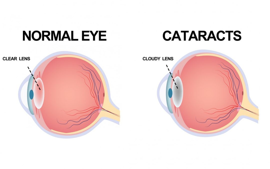 Understanding the 3 Different Types of Cataracts